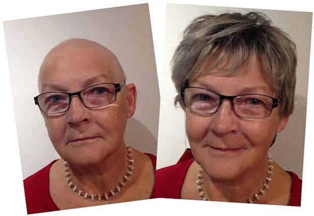 Før og efter billede af parykkunde
